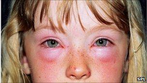 children's seasonal allergies, eyes