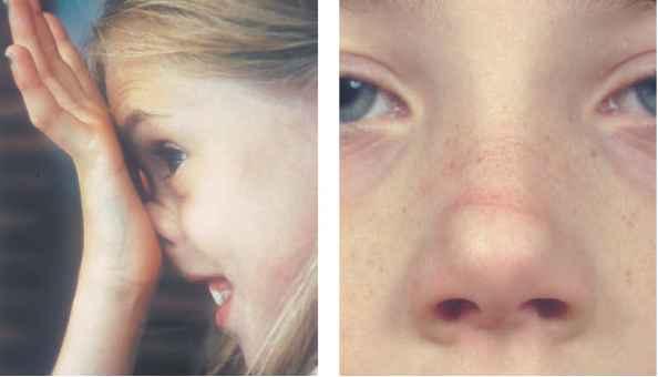seasonal allergic salute in child